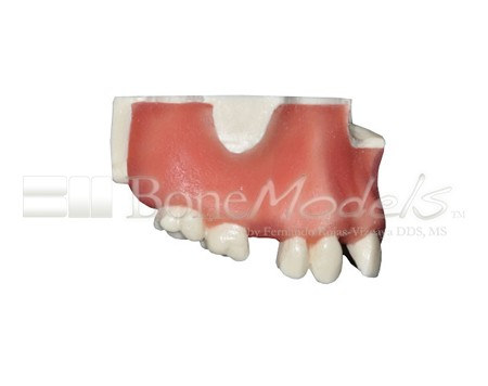 BoneModels U023 02 1 - U-023: Partially edentulous maxilla with 1 socket, healed ridges and soft tissue.