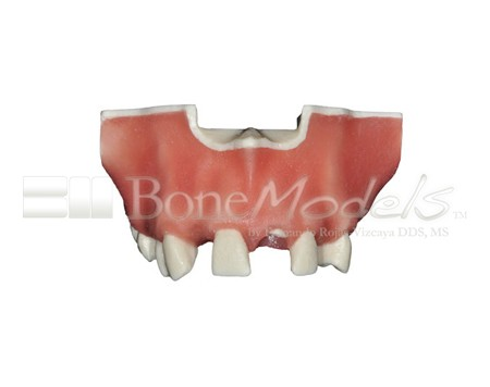 BoneModels U023 04 1 - U-023: Partially edentulous maxilla with 1 socket, healed ridges and soft tissue.