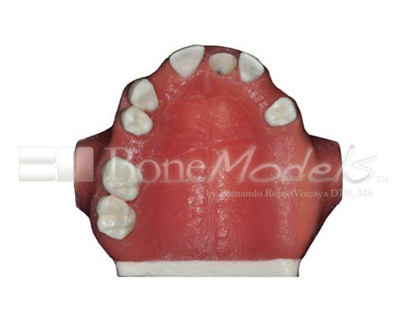 BoneModels U023 06 1 - U-023: Partially edentulous maxilla with 1 socket, healed ridges and soft tissue.