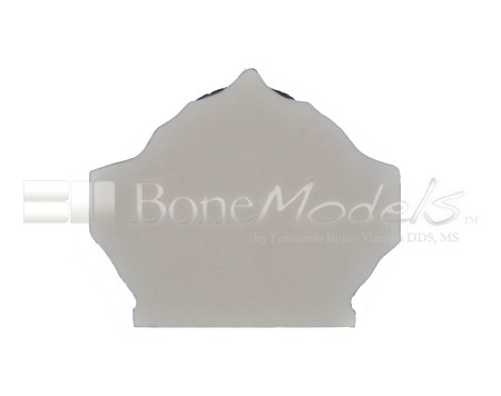 BoneModels U023 07 1 - U-023: Partially edentulous maxilla with 1 socket, healed ridges and soft tissue.