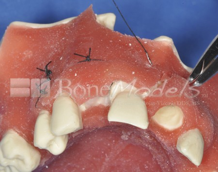 BoneModels U023 09 1 - U-023: Partially edentulous maxilla with 1 socket, healed ridges and soft tissue.
