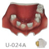 BoneModels U024A 100x100 - U-024B: Partially edentulous maxilla with 1 socket, healed ridges, 1 sinus (thicker bone in the sinus) and soft tissue.