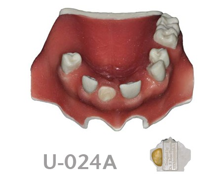 BoneModels U024A - U-024A: Partially edentulous maxilla with 1 socket, healed ridges, 1 sinus and soft tissue.