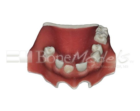 BoneModels U024A 01 - U-024A: Partially edentulous maxilla with 1 socket, healed ridges, 1 sinus and soft tissue.