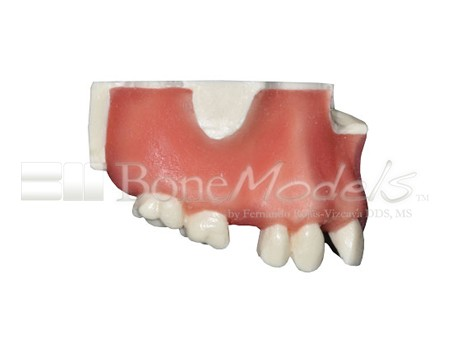BoneModels U024A 02 - U-024A: Partially edentulous maxilla with 1 socket, healed ridges, 1 sinus and soft tissue.