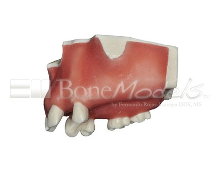 BoneModels U024A 03 - U-024A: Partially edentulous maxilla with 1 socket, healed ridges, 1 sinus and soft tissue.