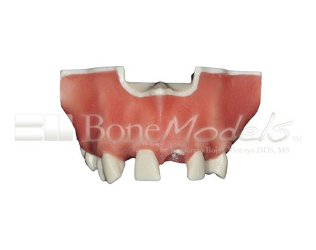BoneModels U024A 04 - U-024A: Partially edentulous maxilla with 1 socket, healed ridges, 1 sinus and soft tissue.
