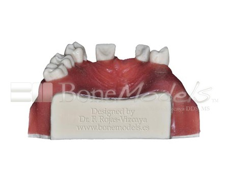BoneModels U024A 05 - U-024A: Partially edentulous maxilla with 1 socket, healed ridges, 1 sinus and soft tissue.