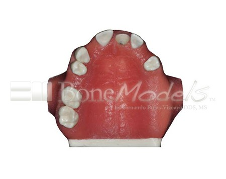BoneModels U024A 06 - U-024A: Partially edentulous maxilla with 1 socket, healed ridges, 1 sinus and soft tissue.