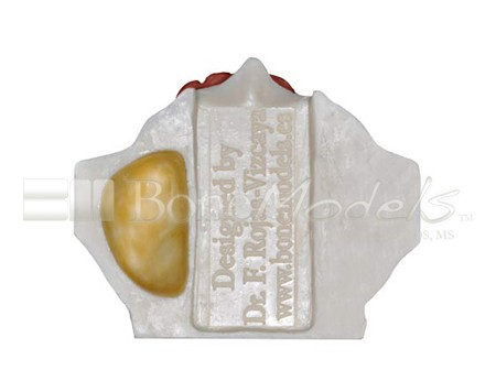 BoneModels U024A 07 - U-024A: Partially edentulous maxilla with 1 socket, healed ridges, 1 sinus and soft tissue.