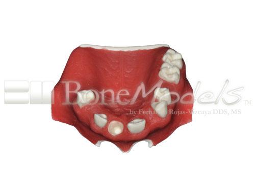 BoneModels U024B 01 500x375 - U-024B: Partially edentulous maxilla with 1 socket, healed ridges, 1 sinus (thicker bone in the sinus) and soft tissue.