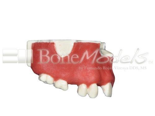 BoneModels U024B 02 500x375 - U-024B: Partially edentulous maxilla with 1 socket, healed ridges, 1 sinus (thicker bone in the sinus) and soft tissue.