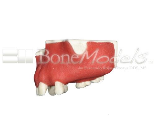 BoneModels U024B 03 500x375 - U-024B: Partially edentulous maxilla with 1 socket, healed ridges, 1 sinus (thicker bone in the sinus) and soft tissue.
