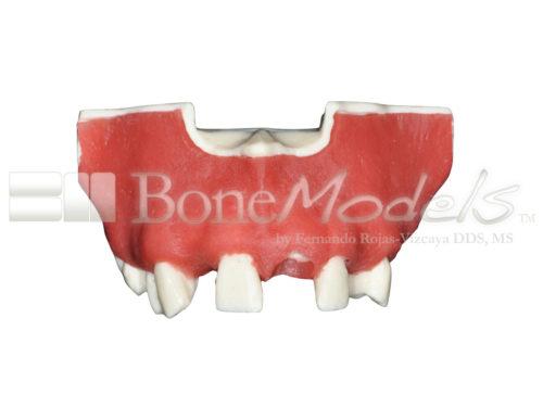BoneModels U024B 04 500x375 - U-024B: Partially edentulous maxilla with 1 socket, healed ridges, 1 sinus (thicker bone in the sinus) and soft tissue.