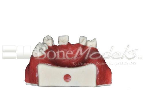BoneModels U024B 05 500x375 - U-024B: Partially edentulous maxilla with 1 socket, healed ridges, 1 sinus (thicker bone in the sinus) and soft tissue.