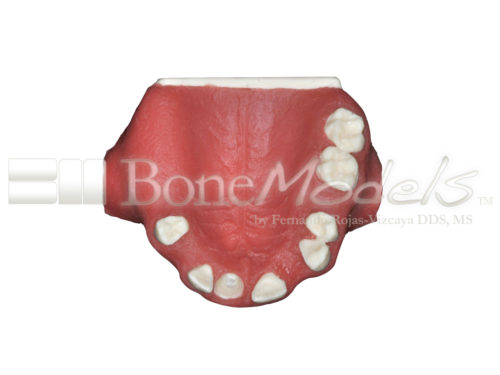 BoneModels U024B 06 500x375 - U-024B: Partially edentulous maxilla with 1 socket, healed ridges, 1 sinus (thicker bone in the sinus) and soft tissue.