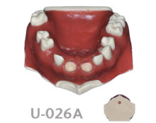 BoneModels U026A 1 220x174 - U-026A: Partially edentulous maxilla with 2 sockets in both centrals, healed ridges and soft tissue.