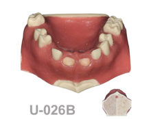 BoneModels U026B 1 220x174 - U-026B: Partially edentulous maxilla with 2 sockets, healed ridges and soft tissue. Cortical bone and two types of cancellous bone.