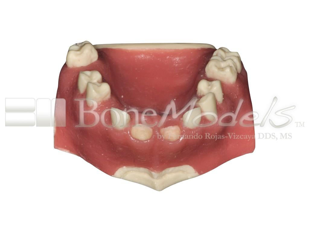 U-026B: Modelo maxilar parcialmente desdentado con dos alvéolos ...