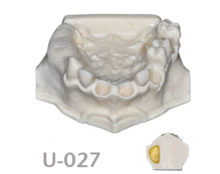 BoneModels U027 220x174 - U-027: Partially edentulous maxilla. Perfect sockets in both centrals and in 1 molar, 1 socket with dehiscence in the canine.