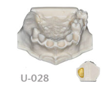 BoneModels U028 1 220x174 - U-028: Partially edentulous maxilla. Perfect sockets in both centrals and in 1 molar, 1 socket with dehiscence in the canine and 1 sinus.