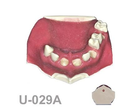 BoneModels U029A 1 - U-029A: Modelo maxilar parcialmente desdentado. Alvéolos perfectos en ambos centrales y un molar y un alvéolo con dehiscencia en el canino y con encía.