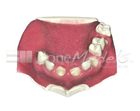 BoneModels U029A 01 1 - U-029A: Modelo maxilar parcialmente desdentado. Alvéolos perfectos en ambos centrales y un molar y un alvéolo con dehiscencia en el canino y con encía.
