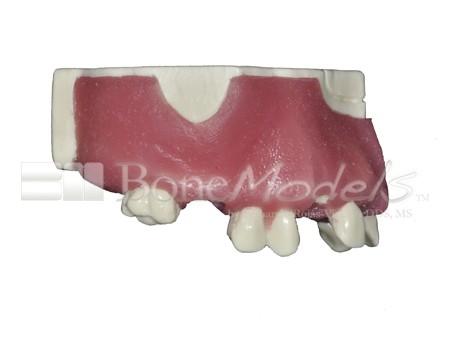 BoneModels U029A 02 1 - U-029A: Modelo maxilar parcialmente desdentado. Alvéolos perfectos en ambos centrales y un molar y un alvéolo con dehiscencia en el canino y con encía.