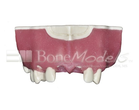 BoneModels U029A 04 1 - U-029A: Modelo maxilar parcialmente desdentado. Alvéolos perfectos en ambos centrales y un molar y un alvéolo con dehiscencia en el canino y con encía.
