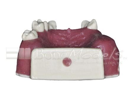 BoneModels U029A 05 1 - U-029A: Modelo maxilar parcialmente desdentado. Alvéolos perfectos en ambos centrales y un molar y un alvéolo con dehiscencia en el canino y con encía.