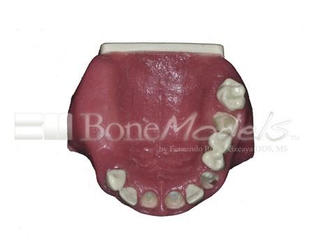 BoneModels U029A 06 1 - U-029A: Modelo maxilar parcialmente desdentado. Alvéolos perfectos en ambos centrales y un molar y un alvéolo con dehiscencia en el canino y con encía.