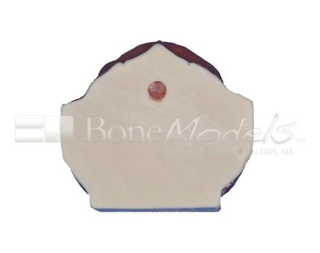 BoneModels U029A 07 1 - U-029A: Modelo maxilar parcialmente desdentado. Alvéolos perfectos en ambos centrales y un molar y un alvéolo con dehiscencia en el canino y con encía.