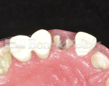 BoneModels U029A 08 1 - U-029A: Modelo maxilar parcialmente desdentado. Alvéolos perfectos en ambos centrales y un molar y un alvéolo con dehiscencia en el canino y con encía.