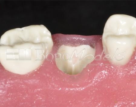 BoneModels U029A 09 1 - U-029A: Modelo maxilar parcialmente desdentado. Alvéolos perfectos en ambos centrales y un molar y un alvéolo con dehiscencia en el canino y con encía.