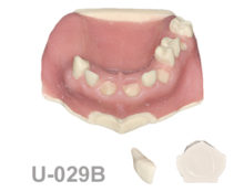 BoneModels U029B 1 220x174 - U-029B: Partially edentulous maxilla. Perfect sockets in both centrals and in 1 molar, 1 socket with dehiscence in the canine with soft tissue. Sandblasting bone and one removable tooth.