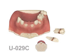 BoneModels U029C 1 220x174 - U-029C: Partially edentulous maxilla with soft tissue. Perfect sockets in both centrals and in 1 molar, 1 socket with dehiscence in the canine with soft tissue. D2 bone density and two removable calculus teeth.