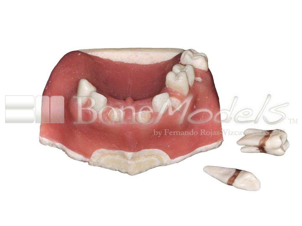 U-029C: Partially edentulous maxilla with soft tissue. Perfect ...