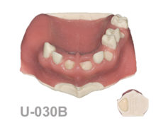 BoneModels U030B 1 220x174 - U-030B: Partially edentulous maxilla. Perfect sockets in both centrals and in 1 molar, 1 socket with dehiscence in the canine,1 sinus (thicker bone in the sinus) and soft tissue.