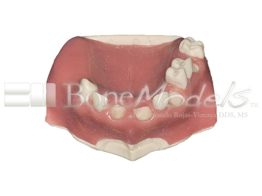 U-030B: Modelo maxilar parcialmente desdentado. Alvéolos perfectos ...