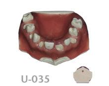 BoneModels U035 1 220x174 - U-035: Maxilla with soft tissue and alternated seven sockets and seven teeth.