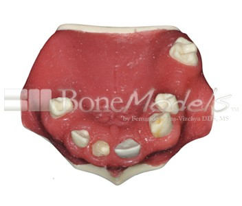 BoneModels U039A 01 - U-039A: Partially edentulous maxilla with left lateral with reduced MesioDistal space for small diameter implant and 3 mm ridge in right side for splint.