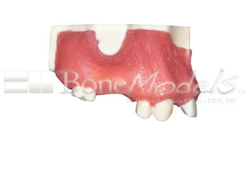 BoneModels U039A 02 - U-039A: Partially edentulous maxilla with left lateral with reduced MesioDistal space for small diameter implant and 3 mm ridge in right side for splint.