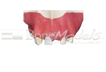 BoneModels U039A 04 - U-039A: Partially edentulous maxilla with left lateral with reduced MesioDistal space for small diameter implant and 3 mm ridge in right side for splint.