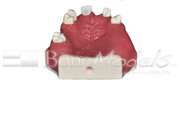 BoneModels U039A 05 - U-039A: Partially edentulous maxilla with left lateral with reduced MesioDistal space for small diameter implant and 3 mm ridge in right side for splint.