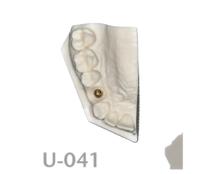 BoneModels U041 220x174 - U-041: Half-maxilla with implant replica (customer need to provide the replica).