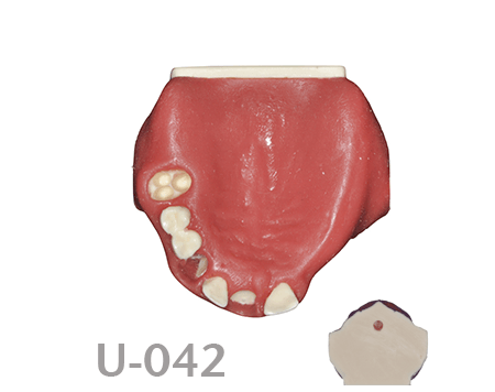 BoneModels U042 - U-042: Partially edentulous maxilla with thin ridge for bone graft augmentation in edentulous right side. Thick palatal soft tissue to take a connective tissue graft.
