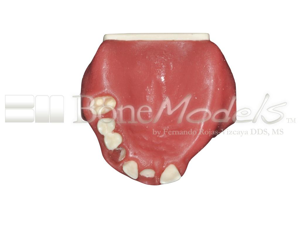 U-042: Partially edentulous maxilla with thin ridge for bone graft ...