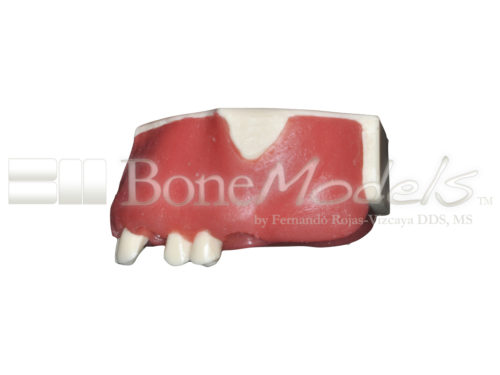 BoneModels U042 04 2 500x375 - U-042: Partially edentulous maxilla with thin ridge for bone graft augmentation in edentulous right side. Thick palatal soft tissue to take a connective tissue graft.