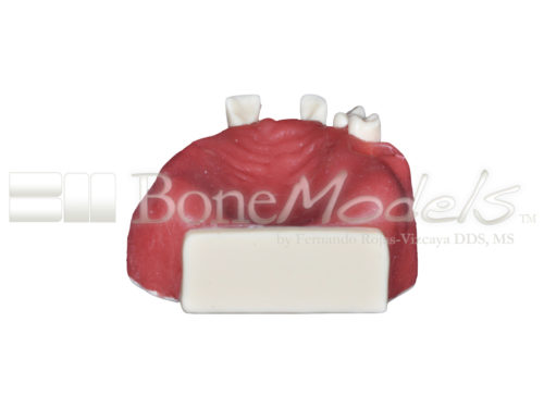 BoneModels U042 06 2 500x375 - U-042: Partially edentulous maxilla with thin ridge for bone graft augmentation in edentulous right side. Thick palatal soft tissue to take a connective tissue graft.