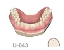 BoneModels U043 220x174 - U-043: Maxilla without removable teeth, D1 density and harder soft tissue.